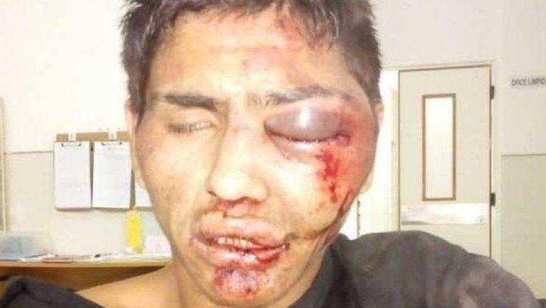 Robó un celular, lo corrieron y le dieron una brutal golpiza