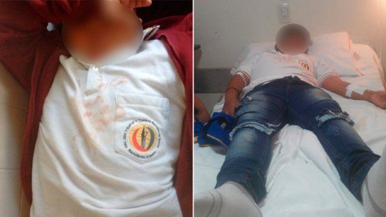 Un chico fue hospitalizado tras ser salvajemente golpeado por tres adolescentes